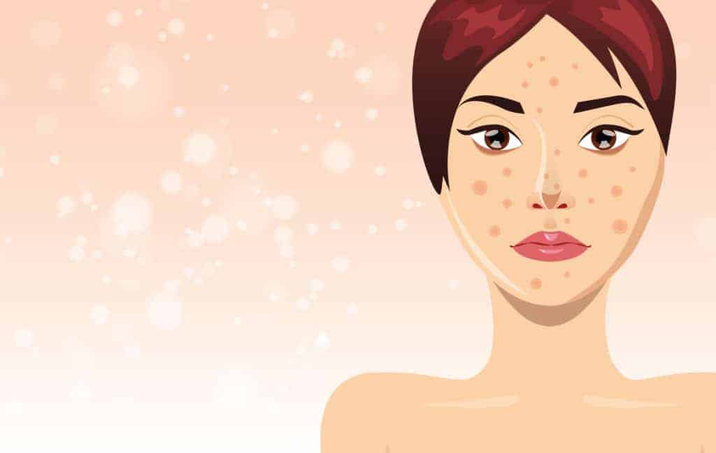 Acne treatment with beautiful woman face