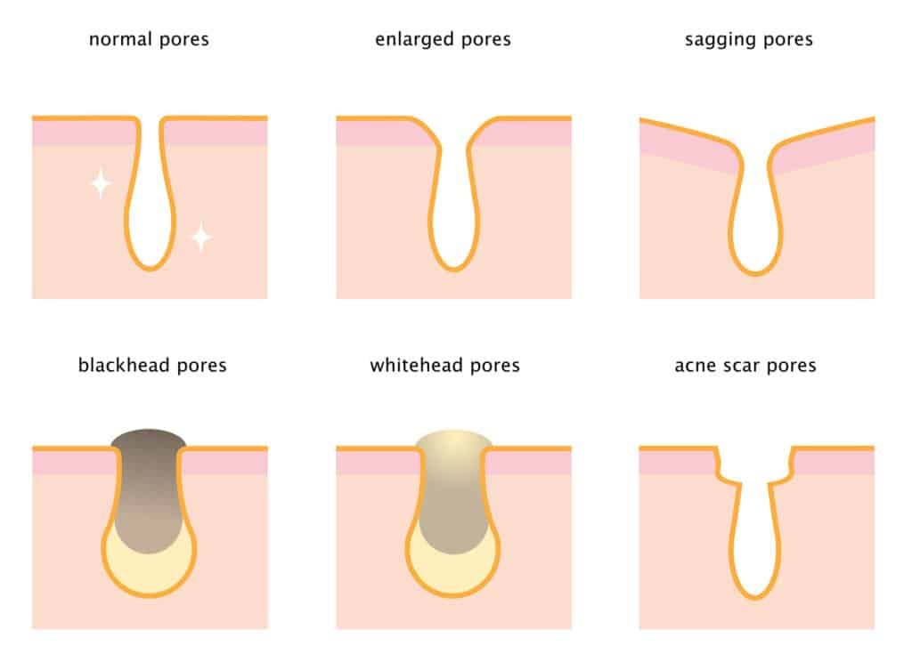 Diagram of skin pores