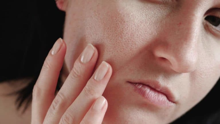 Skin with enlarged pores close-up. The woman touches the skin of her face, examining it.