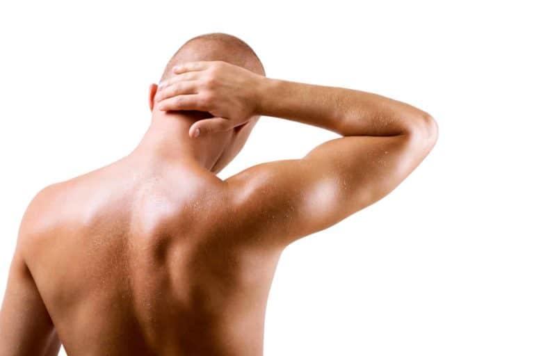 Sunscreen for bald head