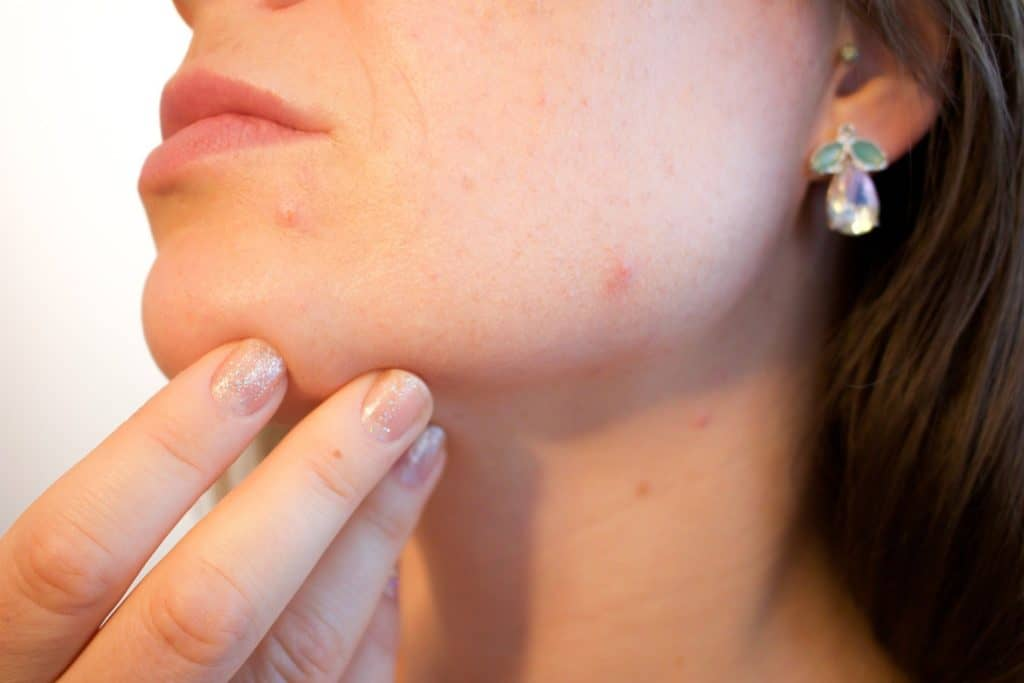 zoom-in of a woman touching her face with pimples