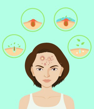 8. Acne scars How to treat them